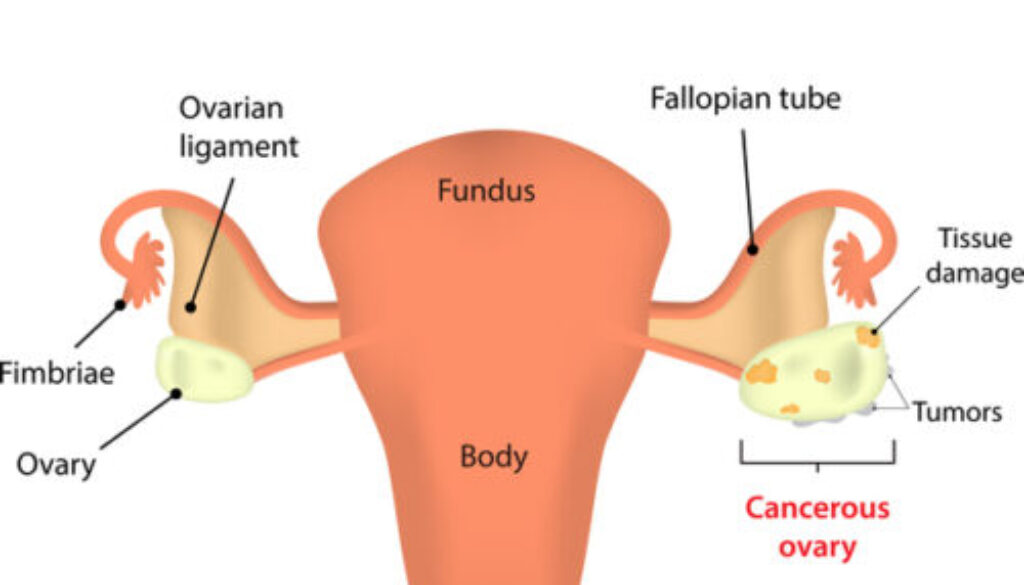 Best-Cancer-specialist-in-Hyderabad-e1596013948292