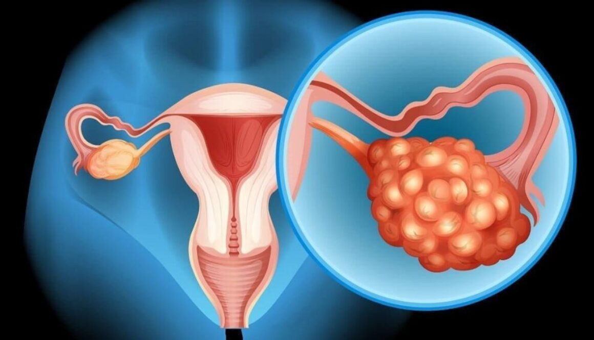 Difficulties-in-Diagnosing-Ovarian-Cancer