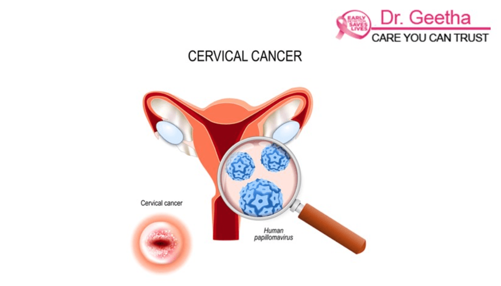Cervical Cancer Causes Risk Factors Symptoms and Treatments