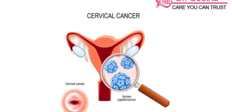 Cervical Cancer Causes Risk Factors Symptoms and Treatments