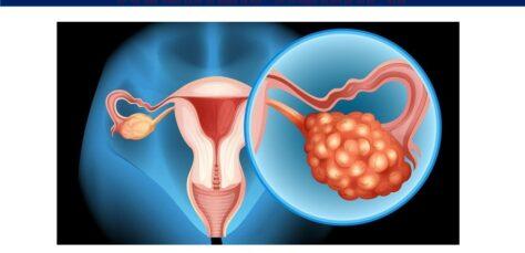 Diagnosing-Ovarian-Cancer