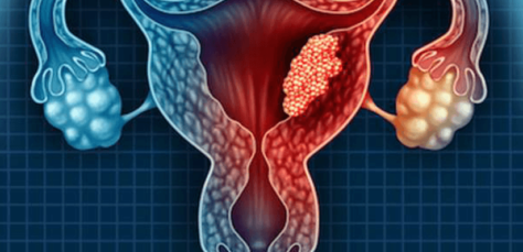 Endometrial (Uterine) Cancer – Causes, Risk Factors & Symptoms
