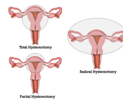 Hysterectomy in Hyderabad