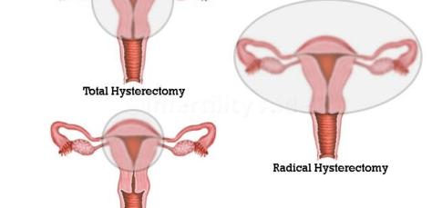 Hysterectomy in Hyderabad
