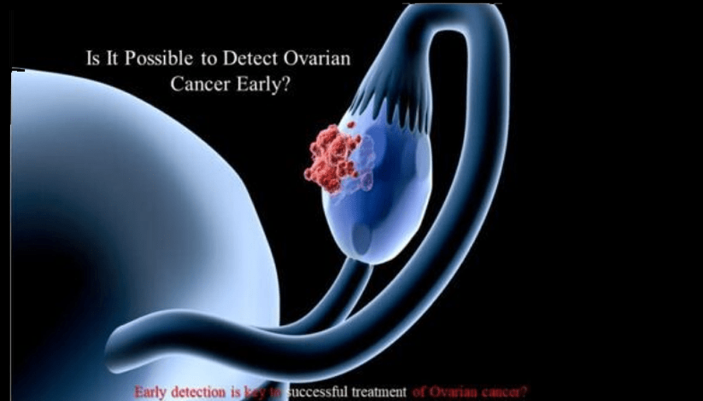 Is It Possible to Detect Ovarian Cancer Early?