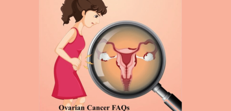Ovarian Cancer FAQs | Symptoms | Risks | Diagnosis