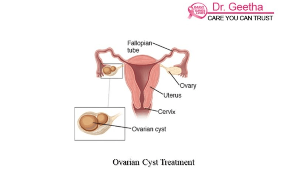 The Best Ovarian Cyst Treatment in Hyderabad | Dr Geetha Nagasree