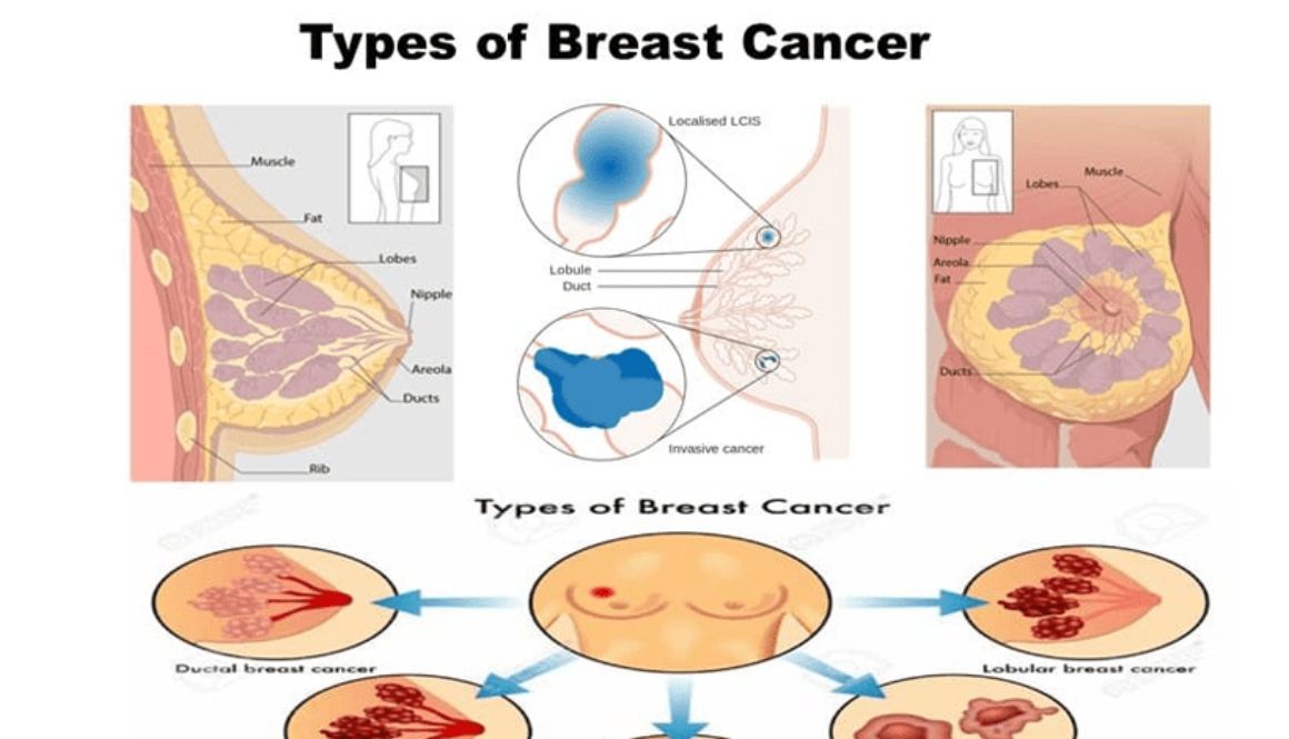 Types of Breast Cancer -You Must Know to Spot Early