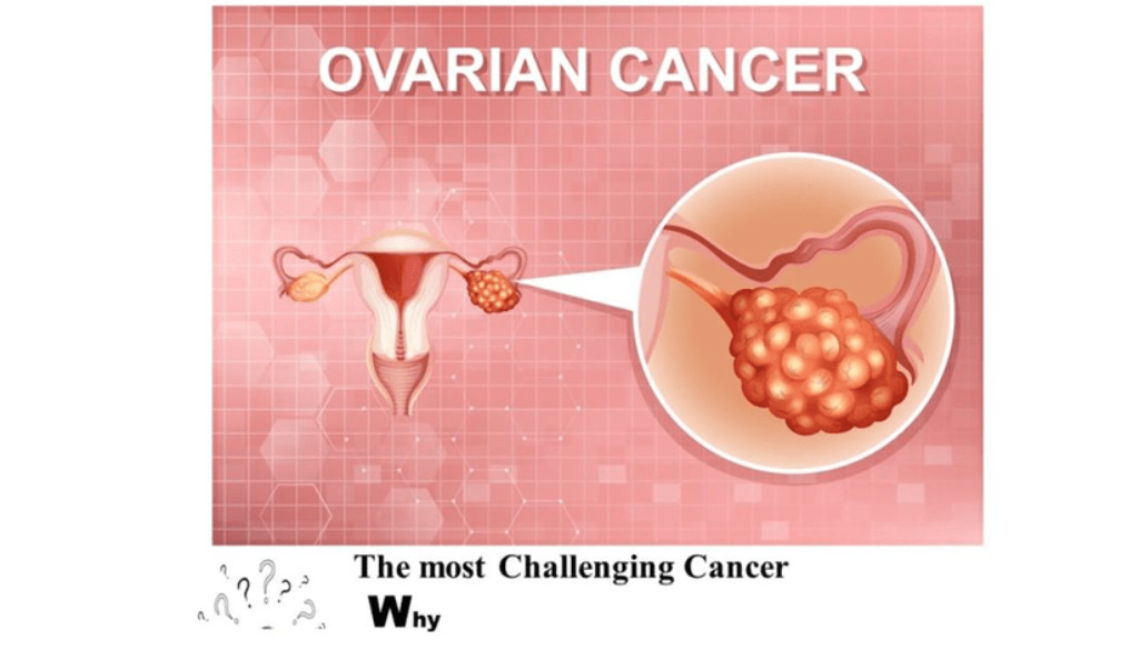Why Ovarian Cancer is the most Challenging Cancer