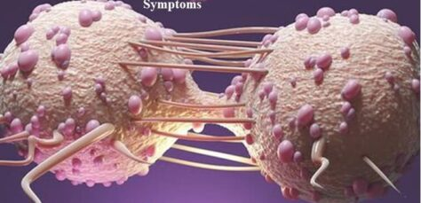 How to Detect Cancer If You Don't Have any Symptoms