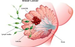 Rare types of breast cancer